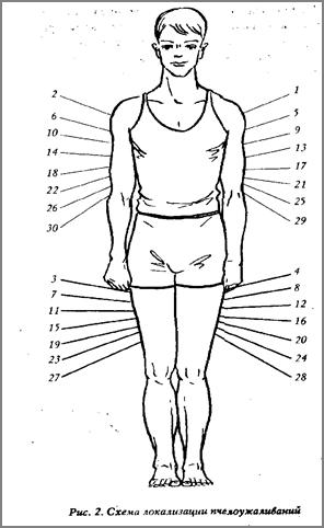 Примерные схемы лечения